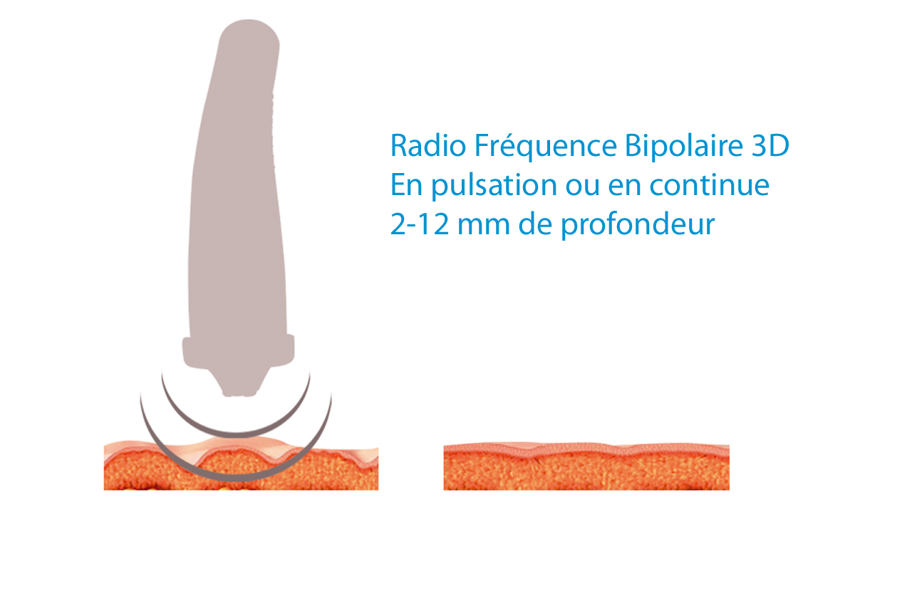 Radio-Frequence-3D